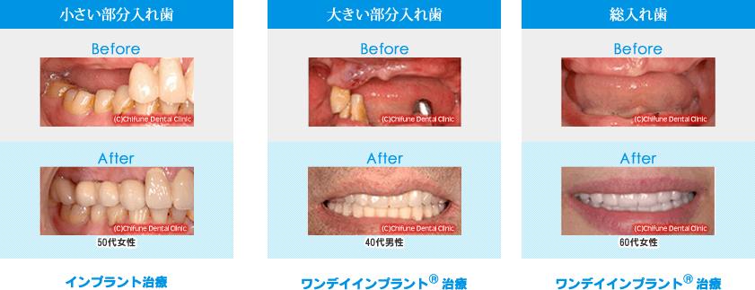 入れ歯からインプラント治療への症状