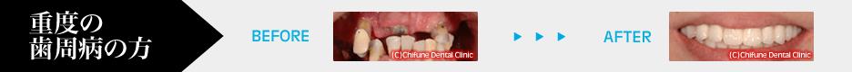 重度の歯周病の方